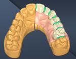 Coronas-anatomicas-r