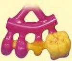 Perfiles-de-cera-rígidos-Uso3