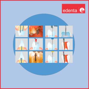 PinesIntraradicularesyLimasEndodoncia-Odont_edenta